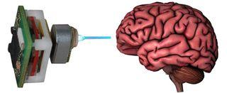 Brainlaser-thumb-550xauto-81732