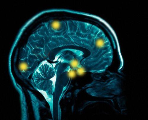 Sfo-brain-scan-final-2